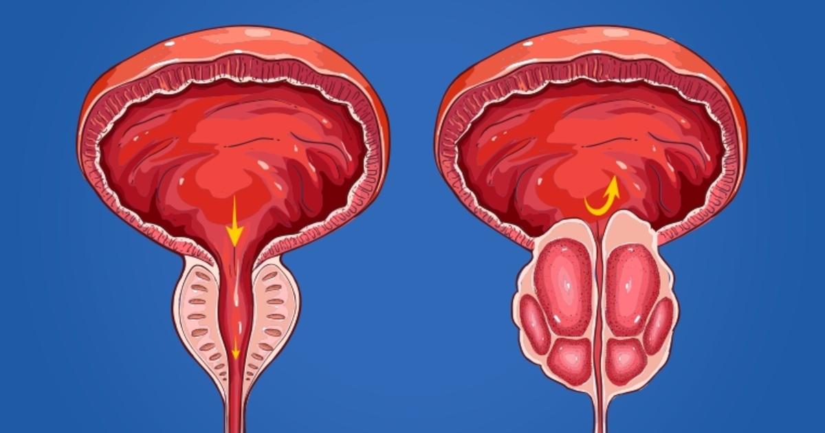prostatitis crónica abacteriana